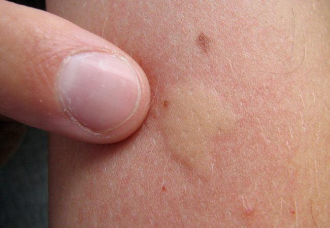 piqure moustique qui gonfle