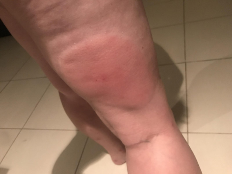 gonflement piqure moustique